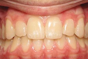 Invisalign & Whitening - after smile
