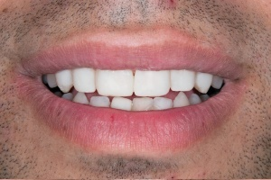 Invisalign - after smile