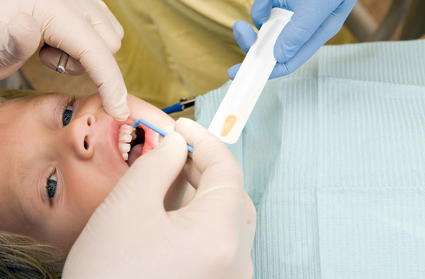 Young boy receiving fluoride treatment at Classic Smiles Family Dentistry in Ocoee, FL