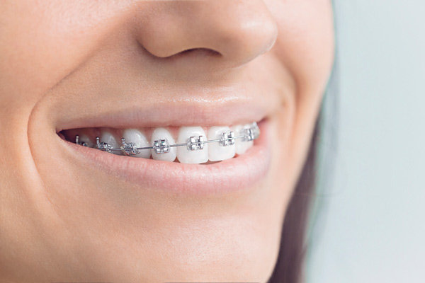 Close up of smiling woman with traditional metal braces from Classic Smiles Cosmetic Dentistry in Ocoee, FL